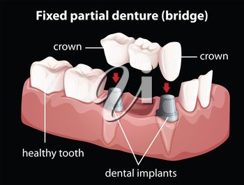 Illustration of a fixed partial denture